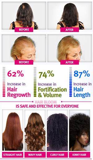 Hair Bloom Hair Regrowth System